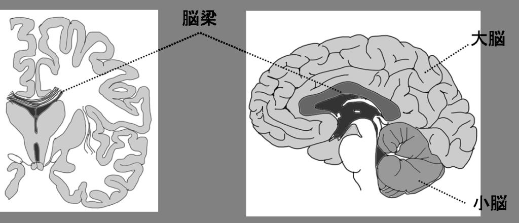 交連線維:脳梁
